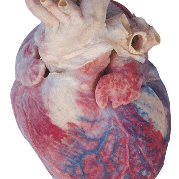Erheblich vergrößertes menschliches Herz (Herzhypertrophie)