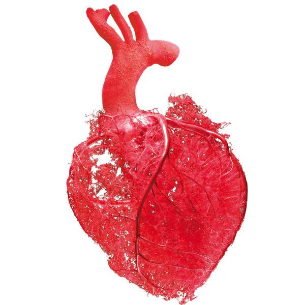 Herzarterien