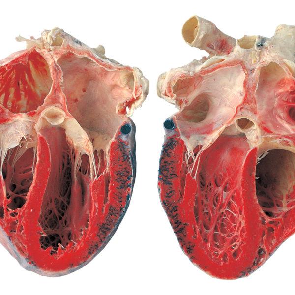 Herz, in Längsrichtung eröffnet