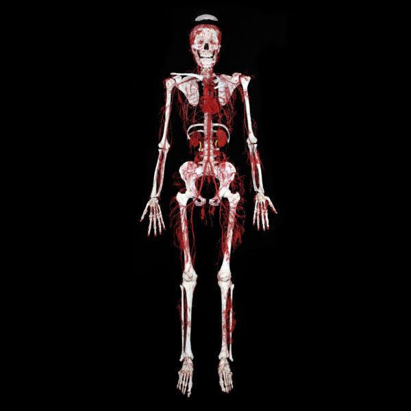 Der Arterien-Knochen Körper