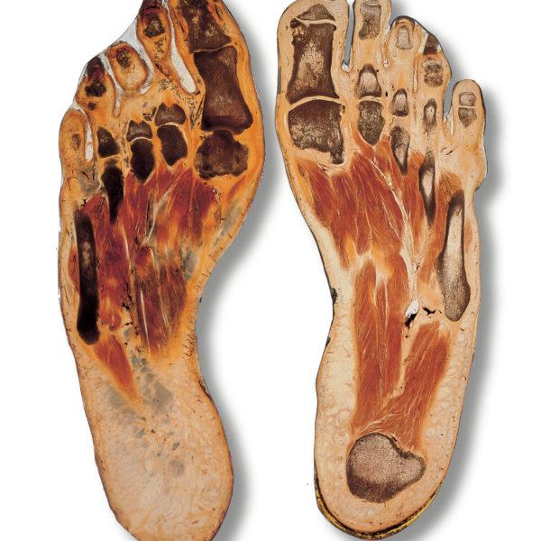 Scheibenplastinat Füße