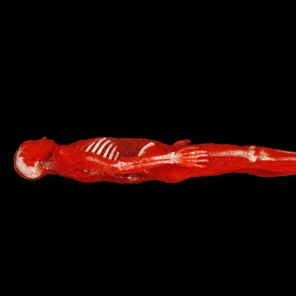 Der Arterien-Mann